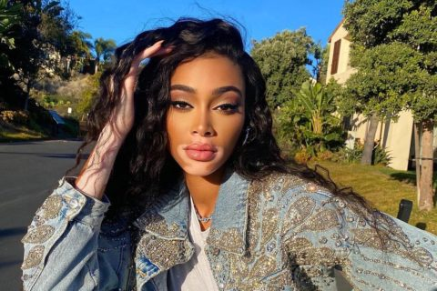 Winnie Harlow Making the Cut: Canadian-Jamaican model Winnie Harlow from the waist up wearing a denim jacket, white top and touching one hand to her black hair