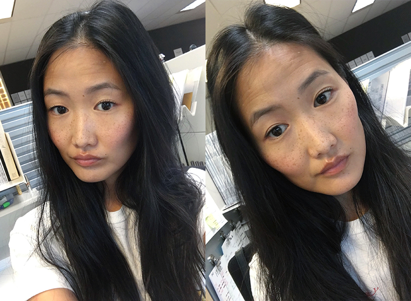Before: me in full uneven eyelid glory. After: hello, perky double eyelids!